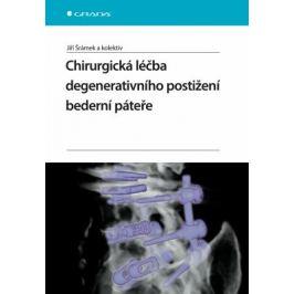 Chirurgická léčba degenerativního postižení bederní páteře - Jiří Šrámek - e-kniha