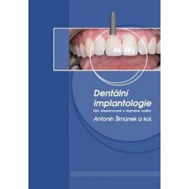 Dentální implantologie - kolektiv autorů, Antonín Šimůnek