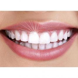 Odstraňovač zubního kamene